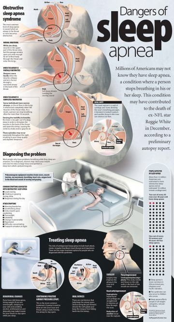 Dangers of Sleep Apnea Infographic