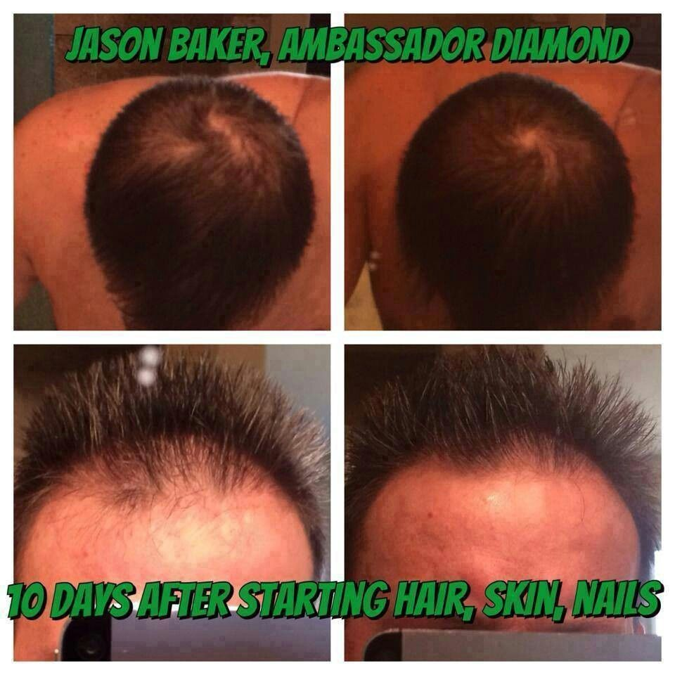Put your hair growth into hyper drive. Hair, Skin and Nails provides ...