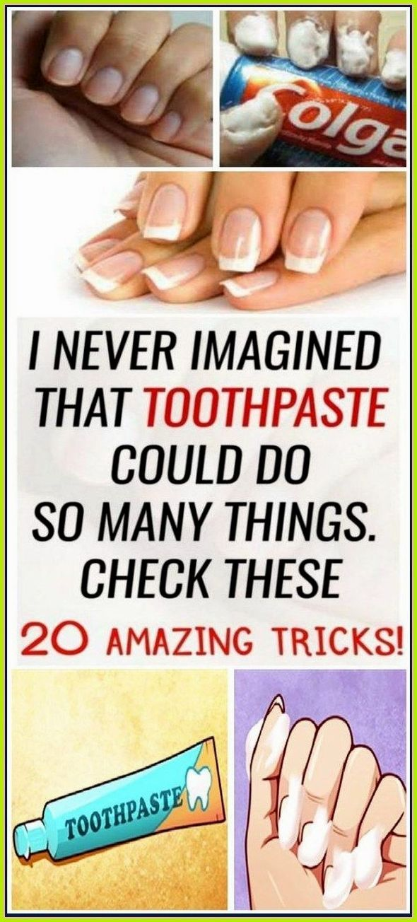 I Never Imagined That Toothpaste Could Do So Many Things Check These 20 Amazing