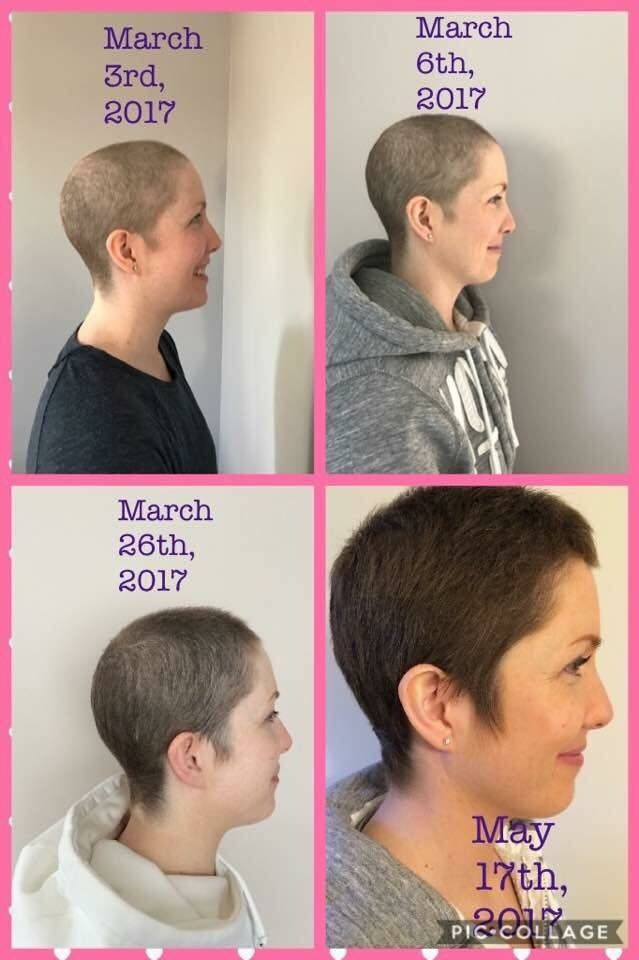 Hair regrowth after Chemo Hairbyclaire.mymonat.com | Healthy health ...