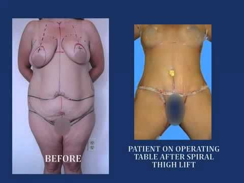 Mel b weight loss 2015