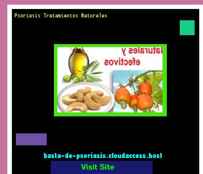 Psoriasis Tratamientos Naturales 223745 - Basta De Psoriasis!