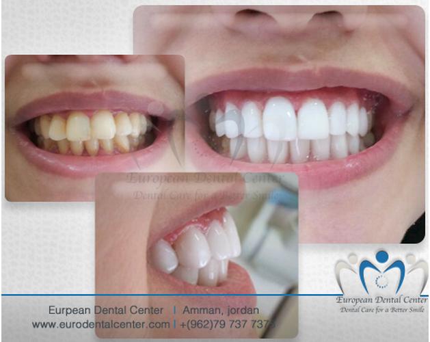 ابتسامات المشاهير ليست للمشاهير حصريا في المركز الاوروبي لطب الاسنان يمكن ان تحصل عليها الان Dental Center Dental Convenience Store Products