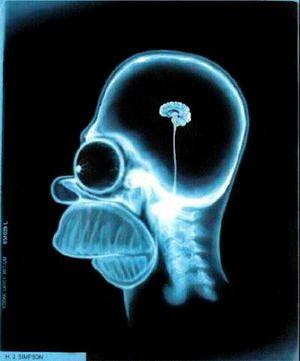 quien tiene este cerebro