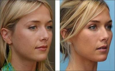 Thermage to jawline? Nasolabial filler? Fat injections to