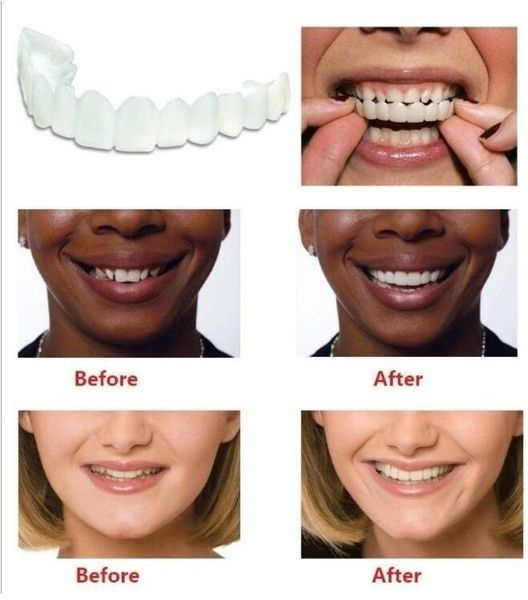 Top and Bottom 2 Pcs Suit Denture Instant Smile Comfort Fit Flex Cosmetic Teeth Denture Teeth Top Cosmetic Veneer AAA #howtodisguiseyourself