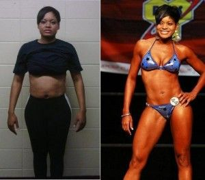 Celebrity weight loss surgery patients
