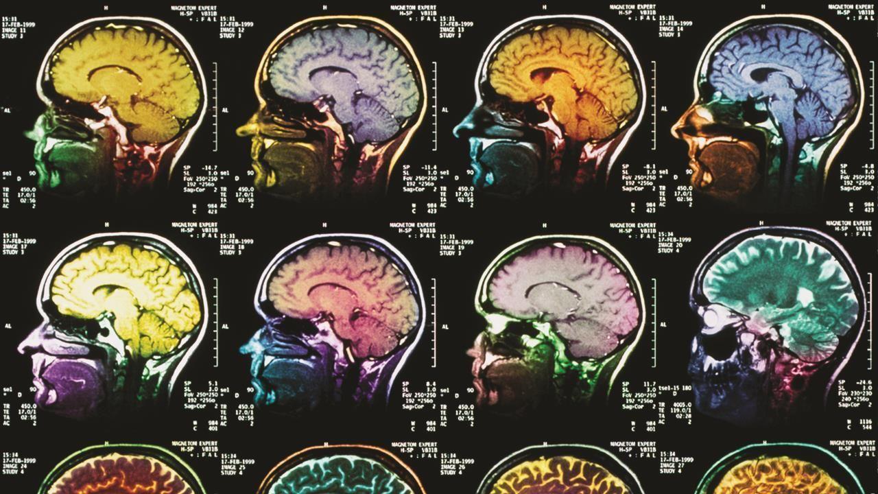 Coloured sagittal mri scans of the human brain hero