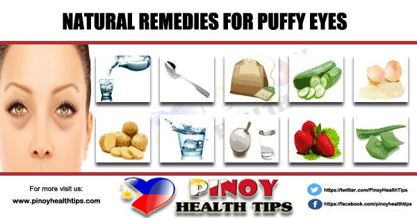 Natural Remedies For Puffy Eyes #healthtips #homeremedies #naturalremedies #herbalmedicine