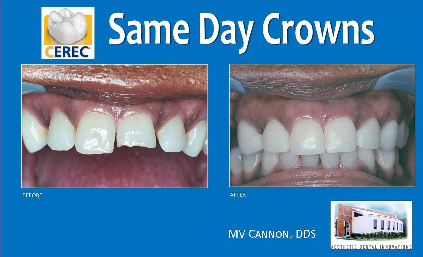 CEREC Same Day Crowns Teeth straightening, Tooth crown
