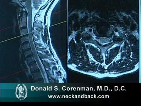 how to read a mri of cervical nerve compression | neck pain, Powerpoint templates