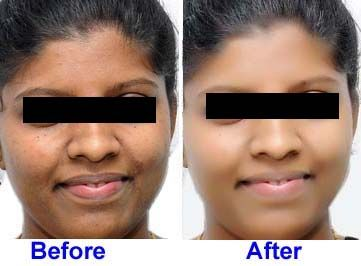 best bleaching cream for black skin reviews