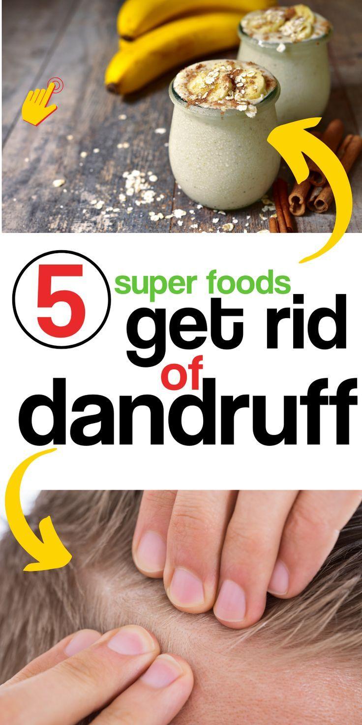 Get Rid of Dandruff with a DIY Hair Mask | Diy hair mask ...