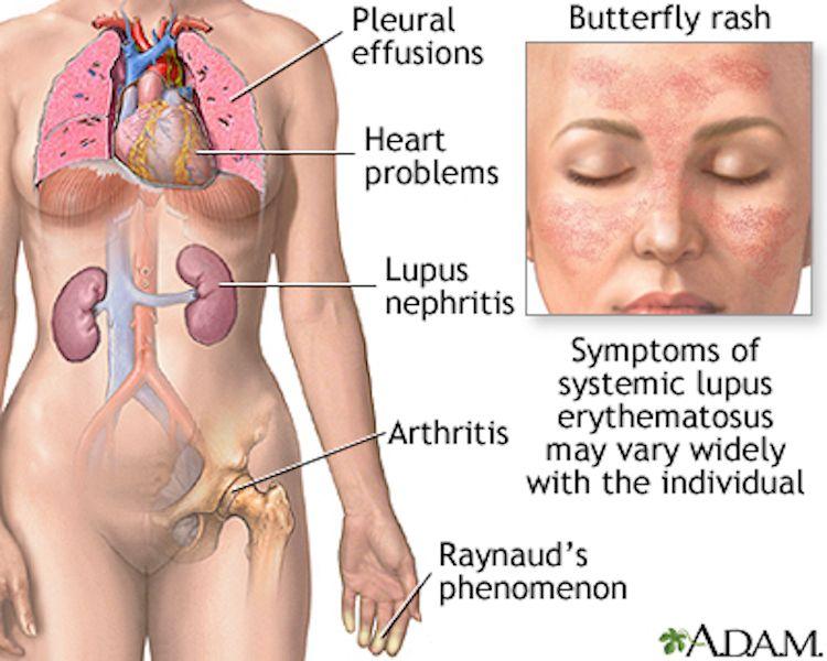 systemic lupus erythematosue systemic lupus erythematosus (sle) is, Skeleton
