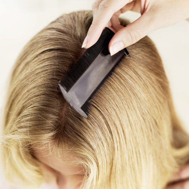How To Know When Lice Eggs Are Dead Or Alive Hair And Makeup Tips Womens Health Magazine Natural Beauty Care