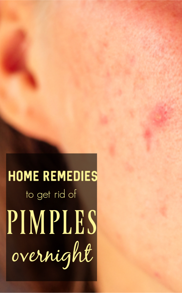 Best Home Remedies To Get Rid Of Pimples Overnight #