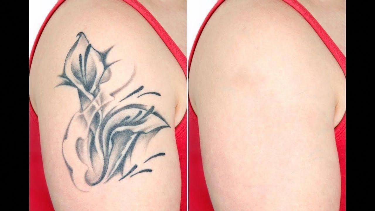 How does laser tattoo removal work tattoo removal before