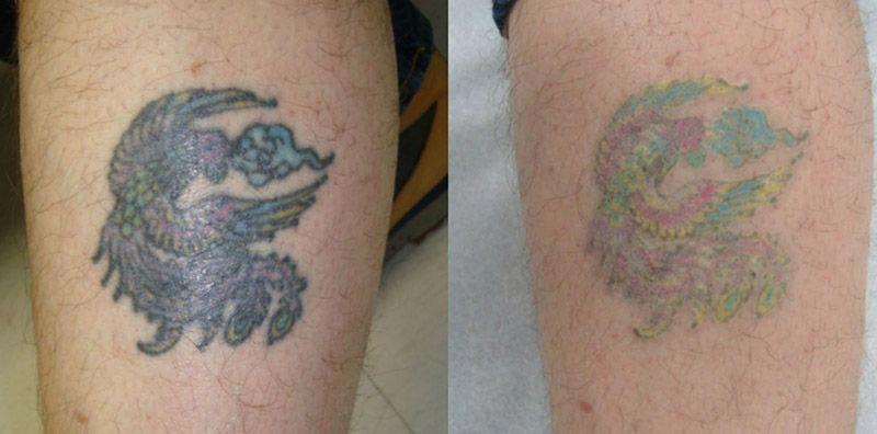 do tattoo fade creams work