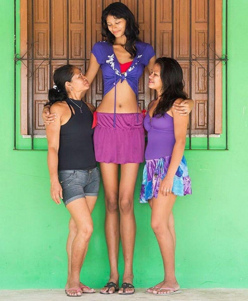 Elisany Silva, the Tallest Teen Girl in the World - Women