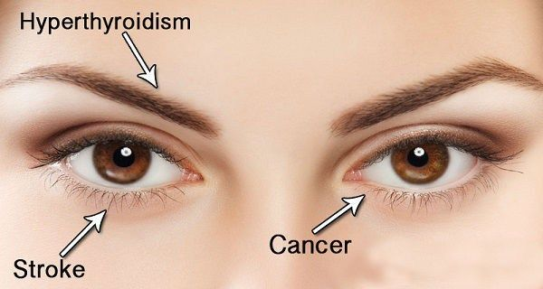 Your Eyes Are Mirror To Your Health 14 Things Your Eyes Can Tell