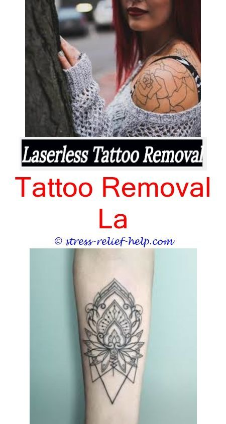 How Much Is Laser Surgery To Remove Tattoos.How Much Does