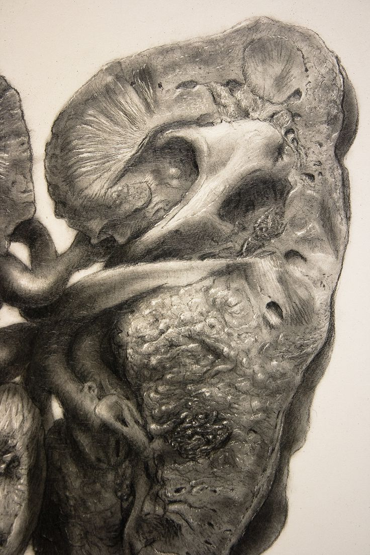 Extensive study of a dissected cadaver kidney drawn in graphite ...