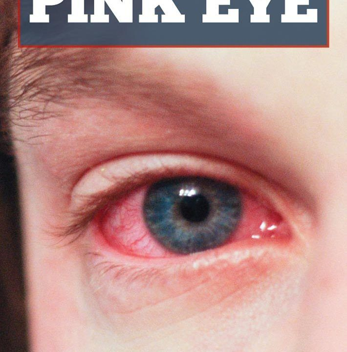 Home Remedies For Pink Eye Naturally Recipes Allergy Remedies Pinkeye Remedies Scratched Cornea
