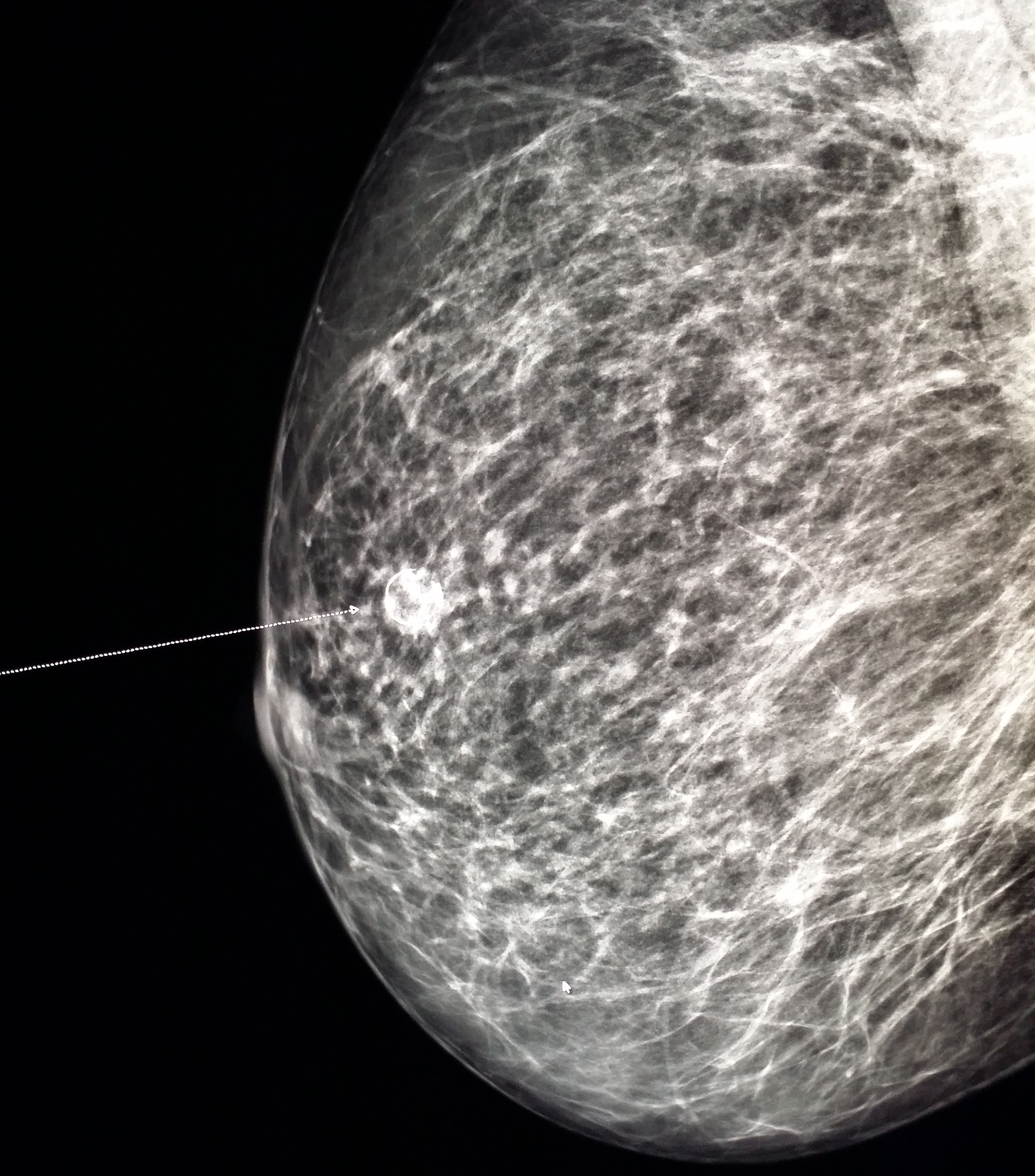 the calcification breast of