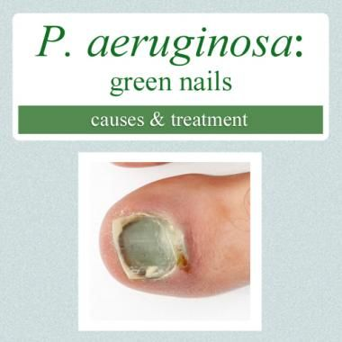 Nail Clinic Pseudomonas Aeruginosa Green Bacterial Infection What Causes It And