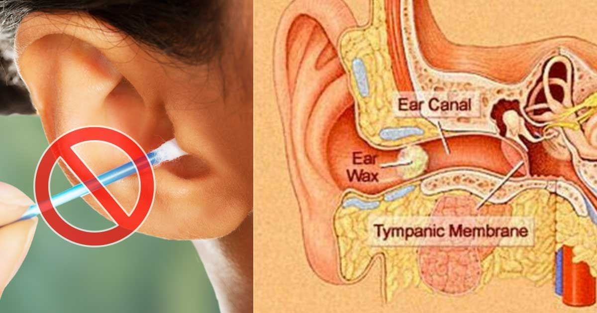 Have Earwax Don T Grab Another Q Tip This Is The Best Way To Clean Out Your Ears Clean Ear Wax Out Ear Wax Ear Cleaning Wax