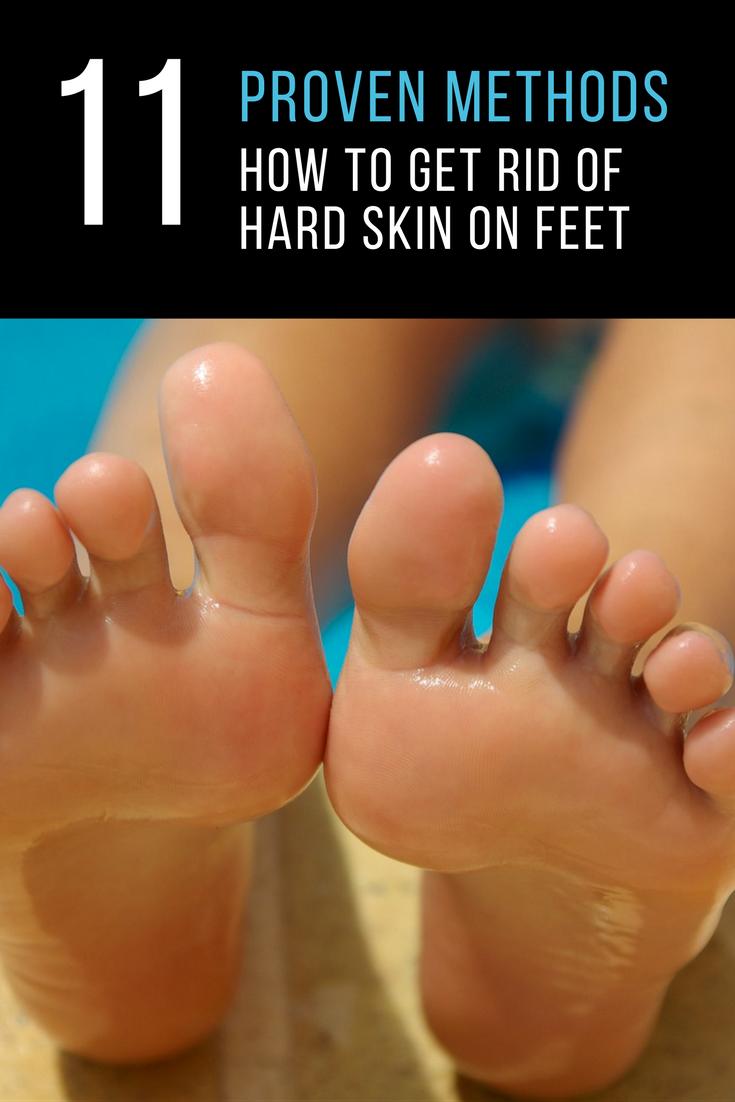 3ddd46c455100dbc2b1f701a58f16116 - How To Get Rid Of Dry Scaly Skin On Feet
