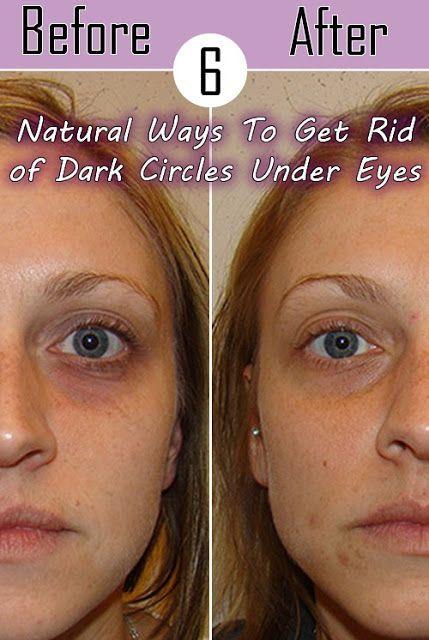 6 Natural Ways To Get Rid of Dark Circles Under Eyes ...