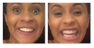 Cardi B Teeth Before And After Old Smile Vs New Empire Bbk