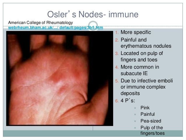 osler nodes or janeway lesions google search health nclex