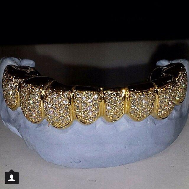 Gold Teeth And Diamond