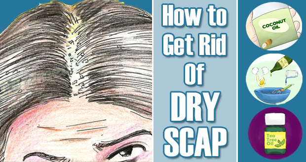 My Health Archive How To Get Rid Of Dry Scalp Overnight With Home Remedies Dry Scalp Flaky Scalp Itchy Scalp Remedy