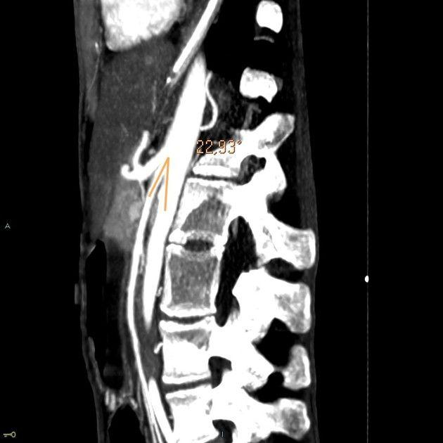 Superior mesenteric artery (SMA) syndrome, also known as Wilkie - sma syndrome