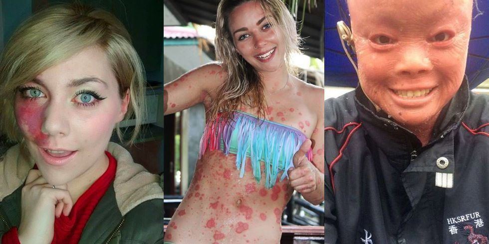 These amazing women are coming forward about their rare skin women with rare skin conditions women speaking out against bullying publicscrutiny Choice Image