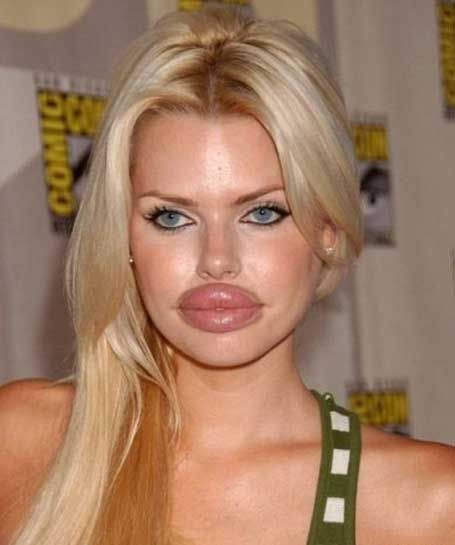 worst cases of botox ever girls celebrities wth funny bad