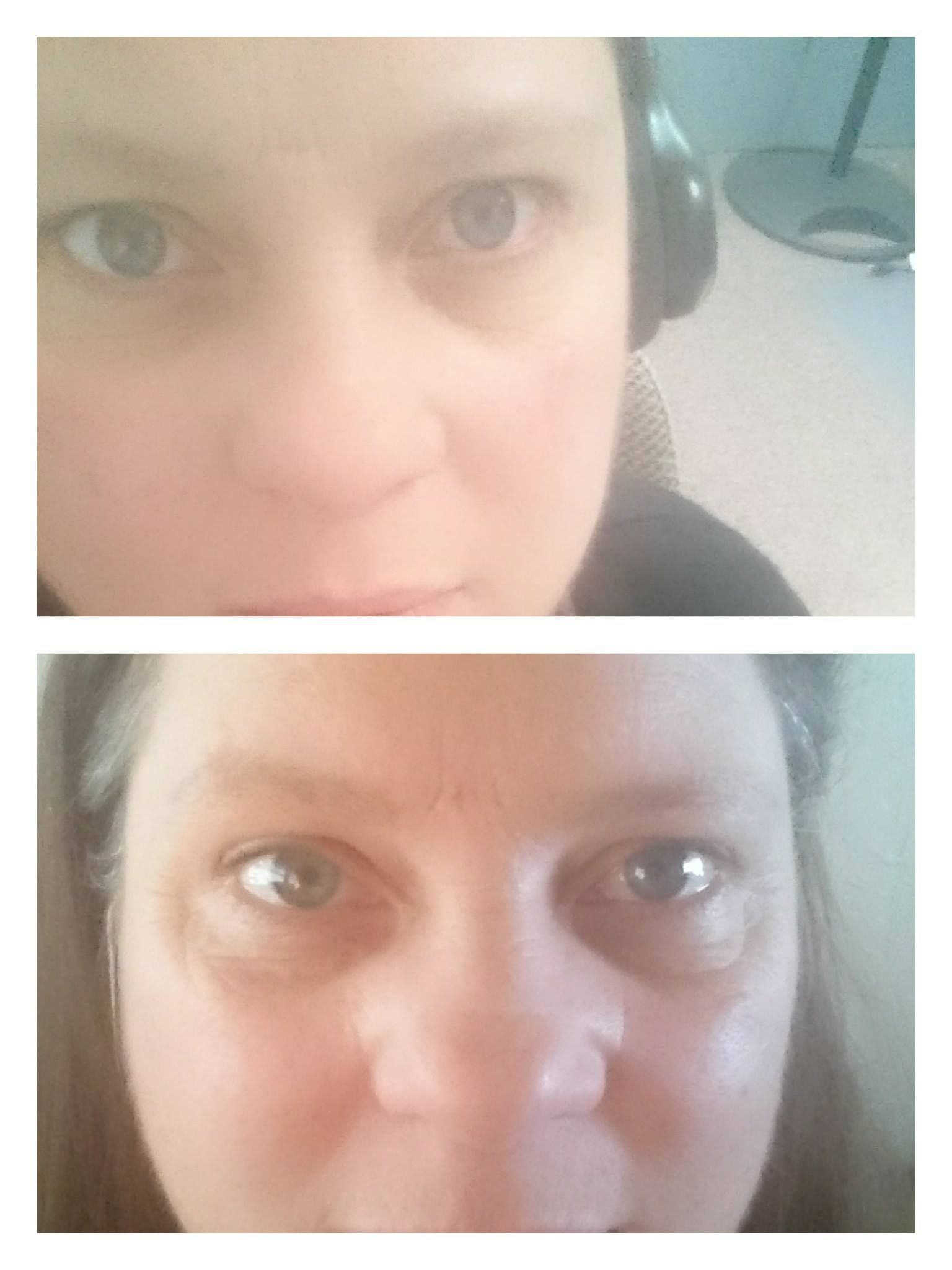 Eye and Lip Concentrate Serum after a few weeks. 27.50 a