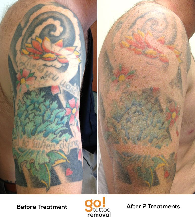 This client has chosen to remove their half sleeve, it no longer ...
