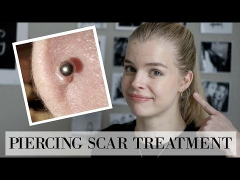 Secret To Getting Rid Of Piercing Bumps Overnight Diy Youtube