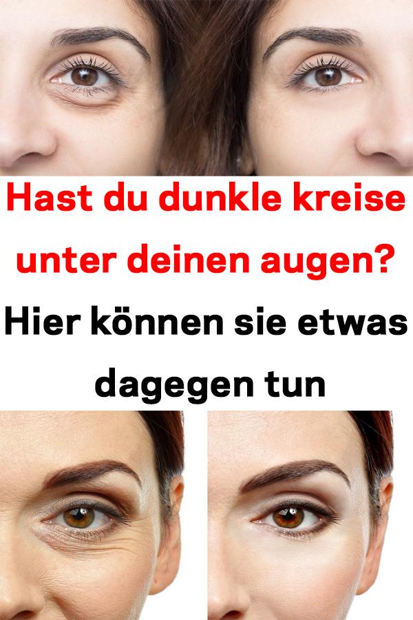 Hast Du Dunkle Kreise Unter Deinen Augen Hier Konnen Sie Etwas Dagegen Tun Hautpflege Haut Augen