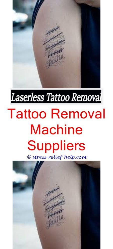 Large Tattoo Removal Tattoo Removal West Palm Beach Tattoo Removal No Laser Tattoo Removal London Tattoo Removal Cream Online India How To Remove