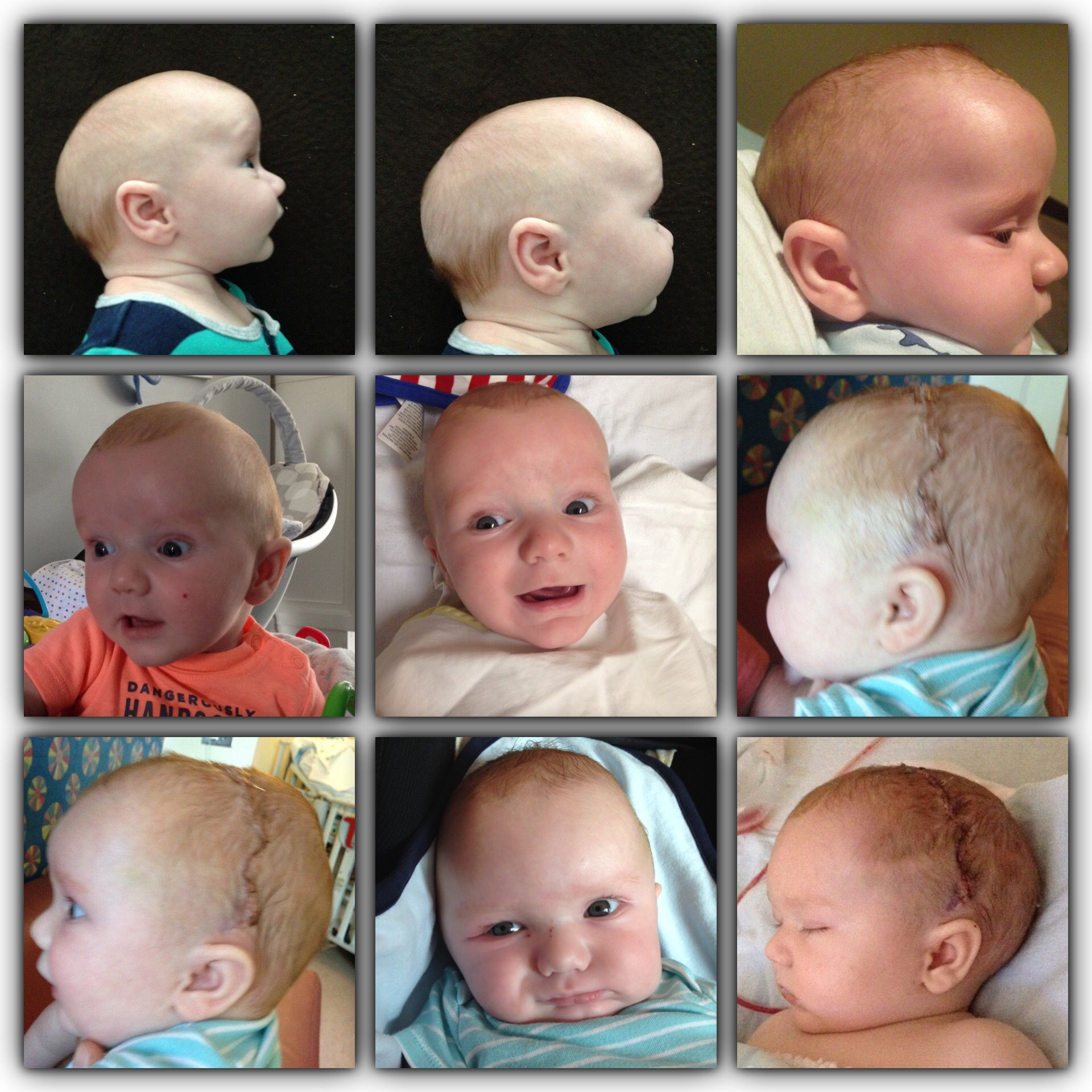 Épinglé par Jessica Siebels sur craniosynostosis | Bébé