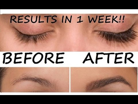 5a3658b7ea0 Grow Long, Thick & Strong Eyebrows & Eyelashes In Just 5 Days | DIY Eyelash  & Eyebrows Growth Serum - YouTube