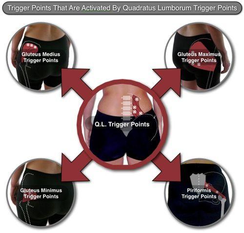 14+ Quadratus Lumborum Trigger Points Masters of Low Back Pain