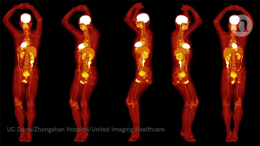 Wholebody PET scanner produces 3D images in seconds (With