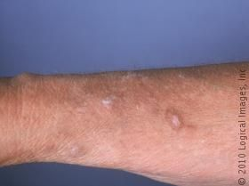 Picture of Lichen Simplex Chronicus/neurodermatitis on the