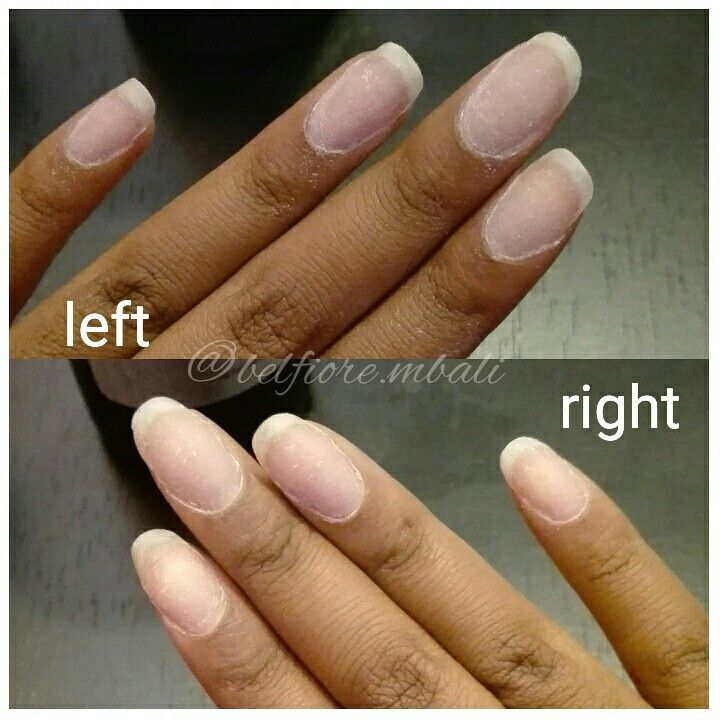 My natural nails after removing Acrylics I had on for about 4 weeks ...